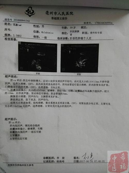 袁希福中医治疗肝癌病灶消失案例