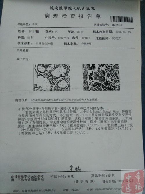 袁希福中医治疗十八岁卵巢癌康复病例
