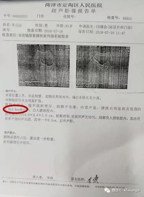 超声影像报告